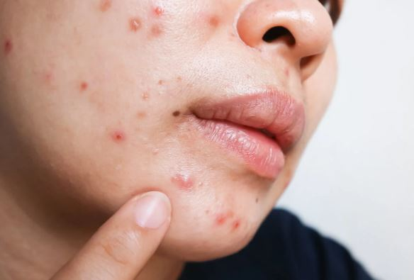 Can a gluten-free diet help take care of the skin?