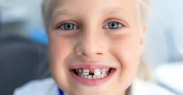 Dental diastema: what does it consist of?